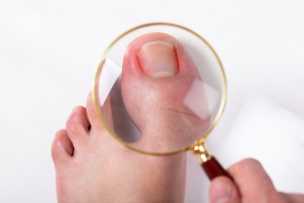 Ingrown toenail (onychocryptosis)