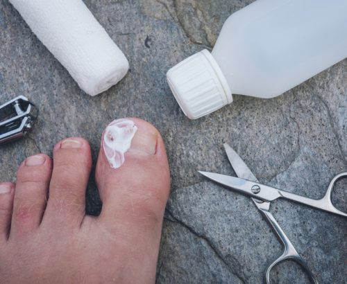 Picture of ingrown toenail post surgery