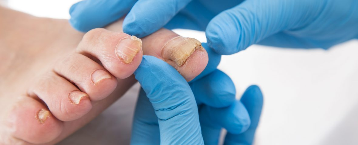 How can we prevent nail fungus infection?