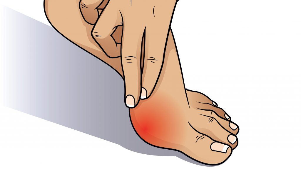 How can orthotics help my bunions?