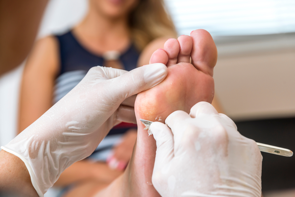 When should I consult a podiatrist for my plantar wart?