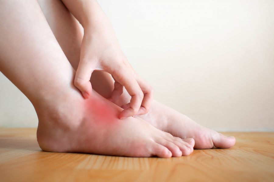 5 tips to relieve foot eczema