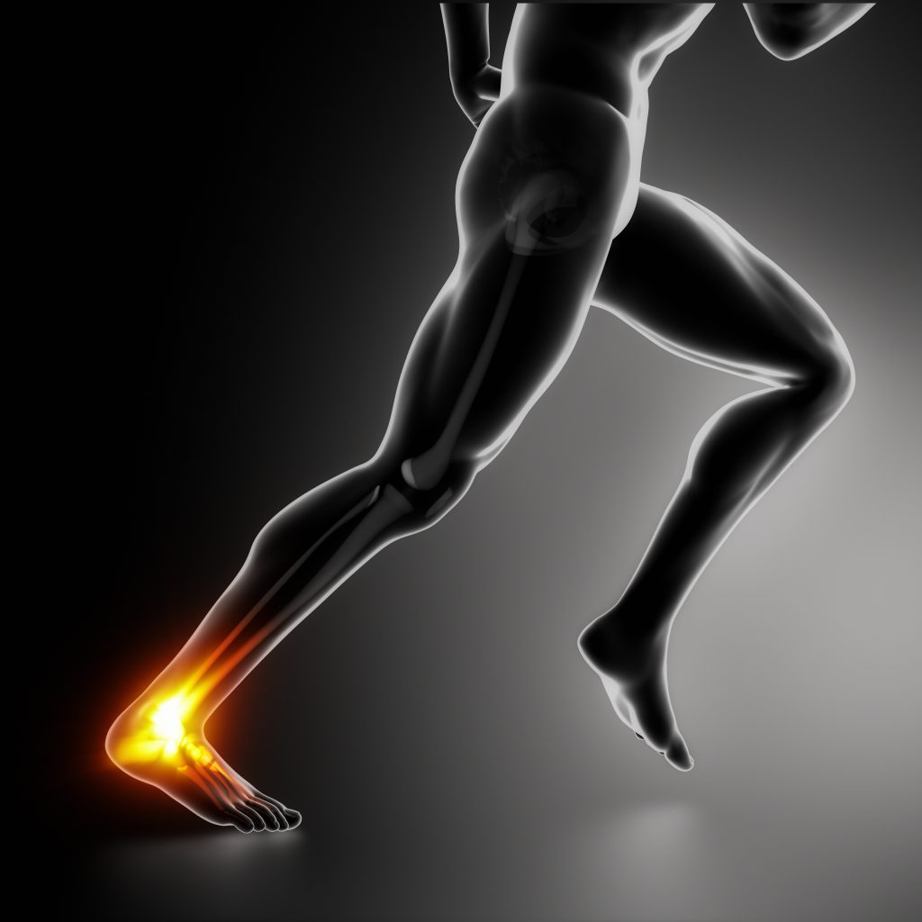 Treating Achilles tendonitis in 5 steps