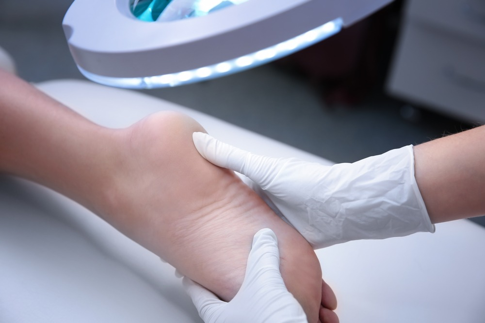 Can a podiatrist remove my plantar wart?
