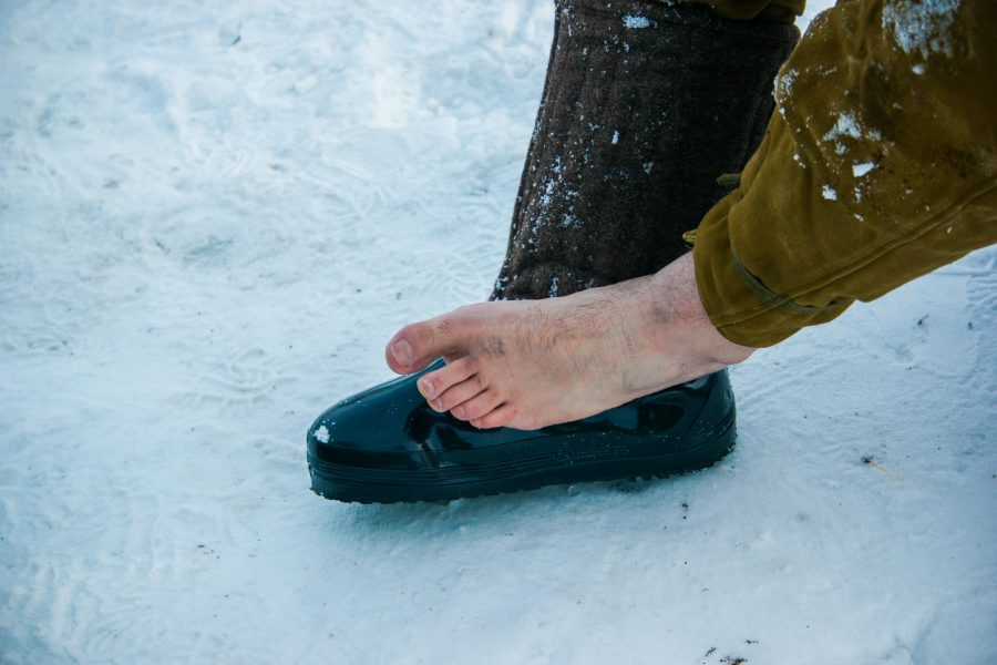 Treating frostbite on the feet and toes