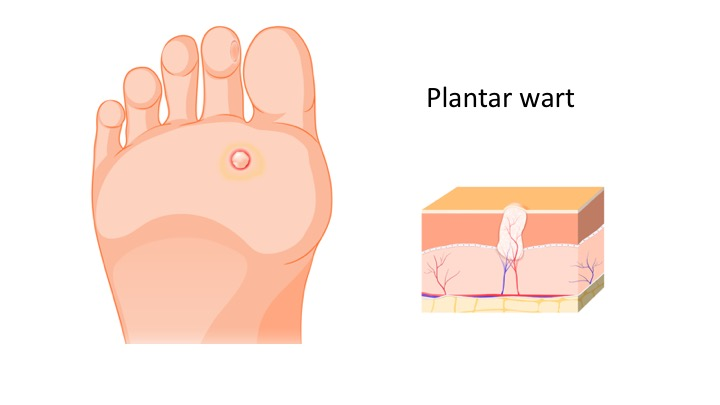 How do I treat my plantar warts at home?
