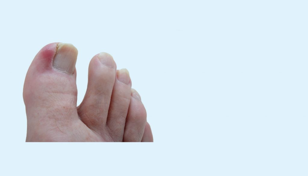 Ingrown Toenail Treatment Podiatrists Piedreseau